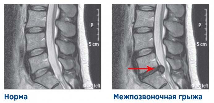 рентген межпозвоночная грыжа
